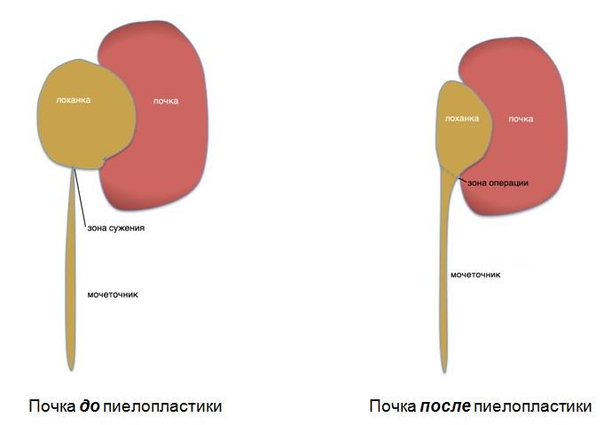 Гидронефроз. Лапароскопическая пластика гидронефроза. Лечение ...
